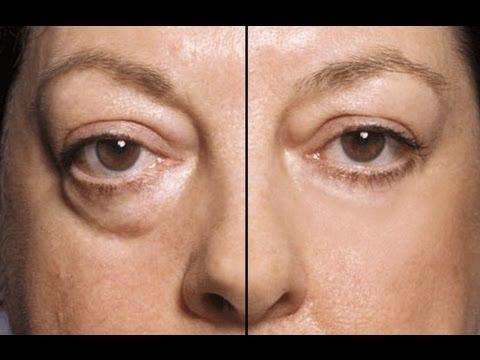 Contraindications facials