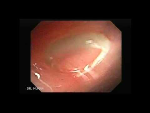 Helminth worm herpes