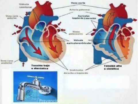 Complicaciones de fibrilación auricular de la enfermedad hipertensiva