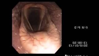トレッドミル内視鏡検査映像