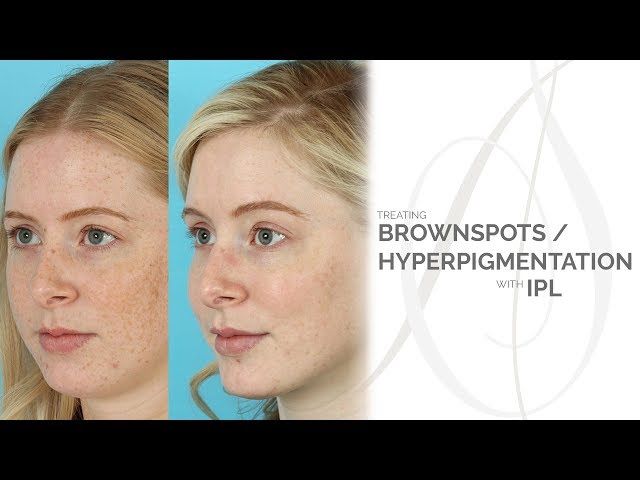 Hyperpigmentation | Chicago, IL