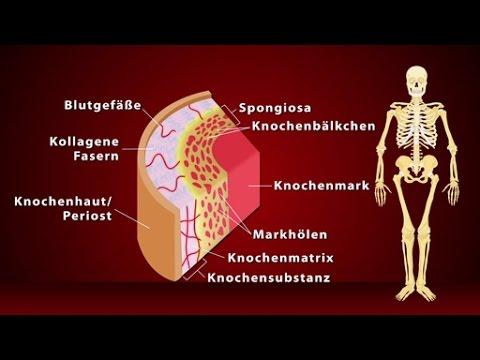 Medizinischer Standard der Osteochondrose