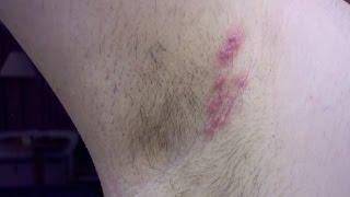 Natural Remedies to Get Rid of Armpit Rash Fast | Armpit rash