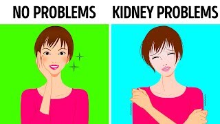 10 Signs Your Kidneys Aren't Working Properly