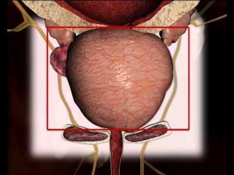 Prostatitis a popruh