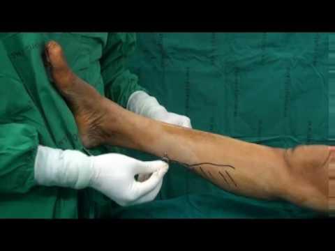 การรักษา hammertoes พิกลพิการของนิ้วมือ