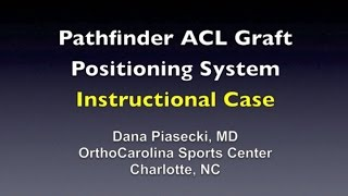 Pathfinder ACL Graft Positioning System - Instructional