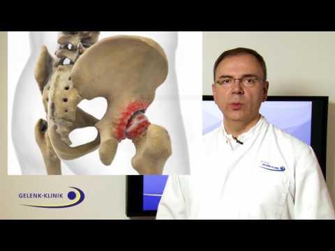 Akute Rückenschmerzen sind taub