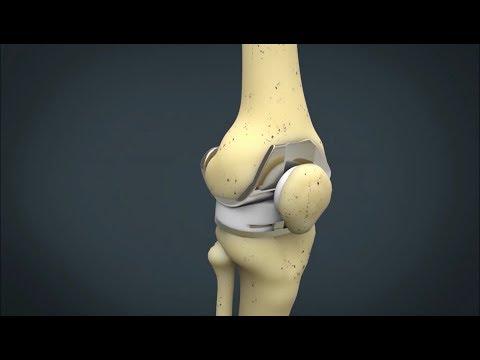 Când articulațiile de pe picioare și brațe doare