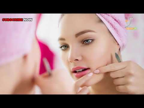 How to Get Rid of Acne Scars and Spots | Medical & Health Talk