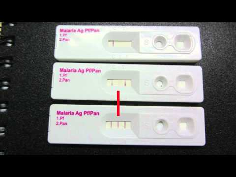 Video Diagnosis & Treatment of falciparum malaria by health workers