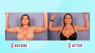 The new way to perform an arm lift surgery