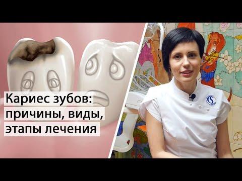 Кариес зубов - причины, виды, этапы лечения   Терапевтическая стоматология