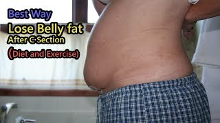 How to Lose Belly fat After C Section (Diet and Exercise)