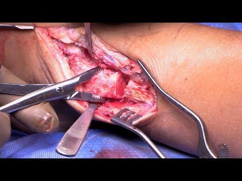 Lateral Talar Dome Osteochondral Allograft Transplantation via Fibular Osteotomy