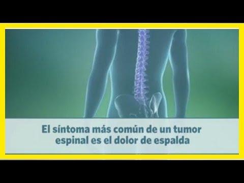 Intervertebral oportunidad de hernia