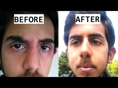 Phytotherapy in cura di dermatite atopic