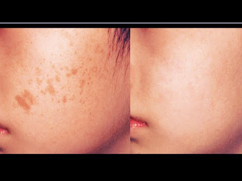 How to remove DARK SPOTS naturally | Get FLAWLESS skin