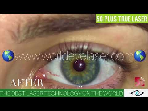EYE COLOR CHANGE PERMANENTLY! 5G PLUS LASER! FROM FIRST DAY