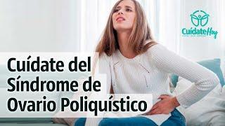 Cuidado con el Síndrome de Ovario Poliquístico (PCOS)