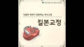 잇몸뼈의 형태가 변화하는 킬본 돌출입교정  :: 부산 킬본교정치과 – 뉴욕스마일치과 교정과치과의원