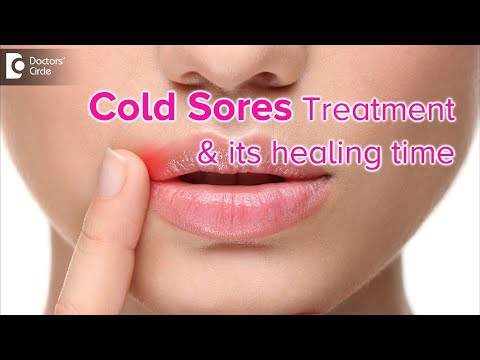 What is the best treatment for cold sores?How soon will it heal? - Dr. Rasya Dixit