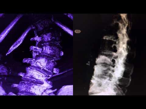 Dolori muscolari, posteriore del collo