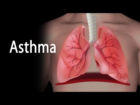 Video Asthma, Animation.