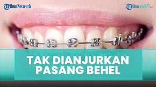 Kondisi yang Tidak Dianjurkan untuk Melakukan Pemasangan Behel, Begini Penjelasan dari Dokter Gigi