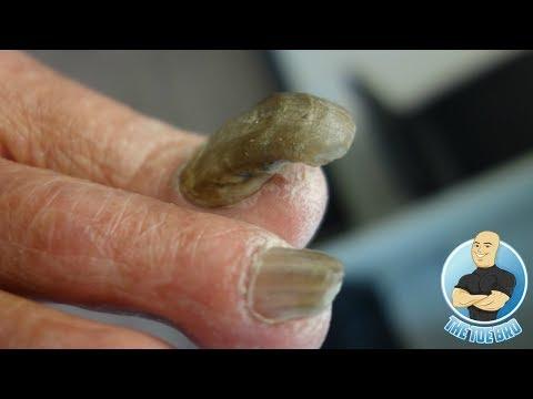 Isang anti-fungal kili-kili