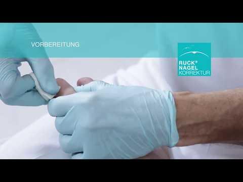 Jak leczyć guzki na palcach bez chirurgii