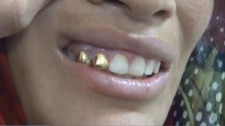 Altın dişli, Son Model Telefonlu Dilenciler