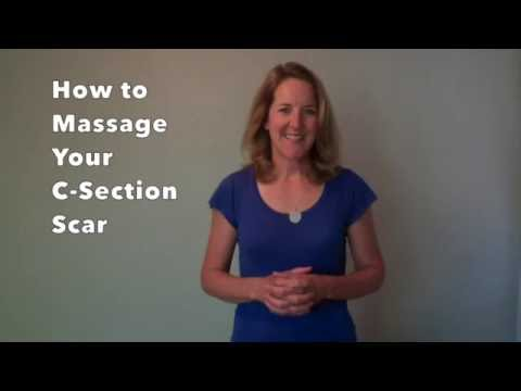 Video How to Massage Your C-Section Scar