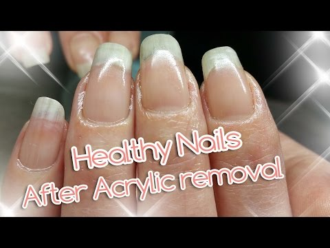 Video Acrylic Nail Removal   For Healthy Nails