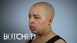 """Can """"Botched"""" Doctors Help Patient With Ginormous Lips? 