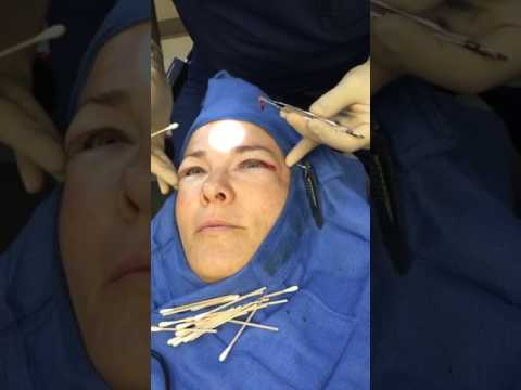 Upper Blepharoplasty – Eyelid Lift
