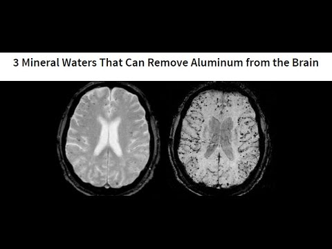 Silicia and Mineral Waters like Fiji can prevent and improve Cognitive Decline and other degernerative conditions