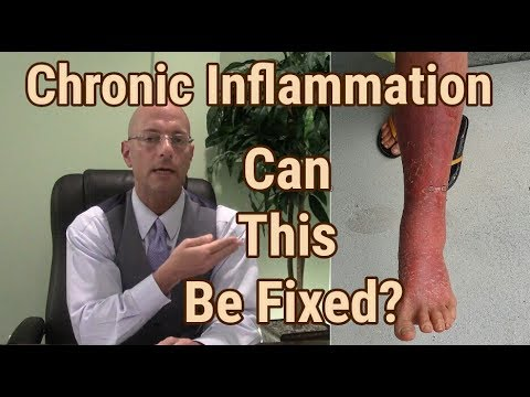 Video Chronic Inflammatory Response: Removing The Causes Of Chronic Disease