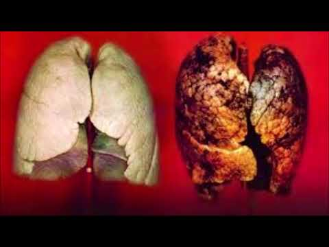 Trajtim spa për hipertensionit arterial