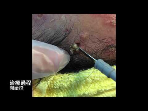 Gnarly Blackhead!