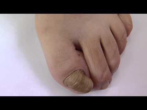 Dermatite di atopic di pelle di una fotografia