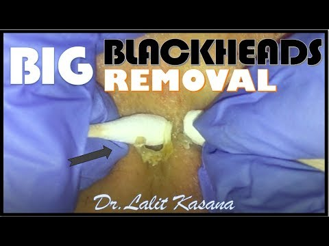 Extracting Amazing DEEP Blackheads!!