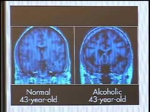 Cura di alcolismo e come salute di influenze