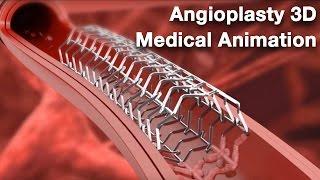 Angioplasty - Medical animation