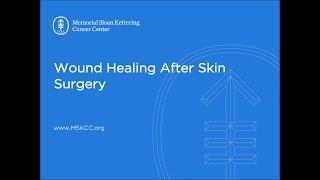 Wound Healing After Skin Surgery   Memorial Sloan Kettering