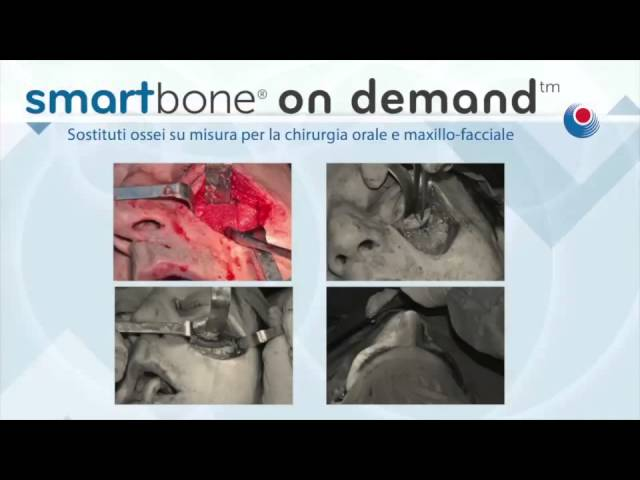 Sensational Maxillo-facial surgery of a Serbian Soldier with Smartbone on Demand (ITA)