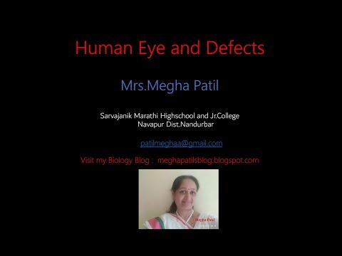 Csepp lézeres látásjavítás után