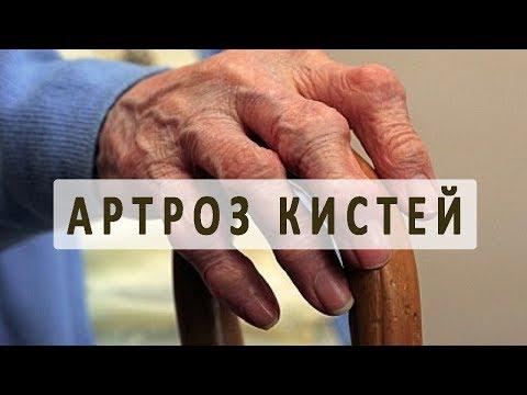 Все, что нужно знать об артрозе кистей рук