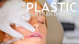 Lip Injections with Filler (Bow and Arrow Technique) | PLASTIC with Dr. Dhir