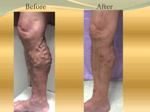 Picioarele goale de la varicoză